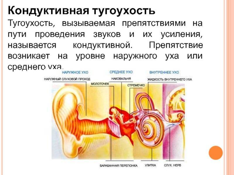 Кондуктивная тугоухость: что это такое, смешанная и нейросенсорная, двухсторонняя, кохлеарная имплантация