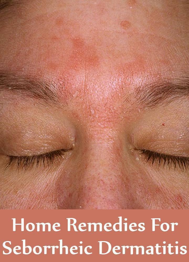 Мази при дерматите атопическом, себорейном, аллергическом, контактном у детей, взрослых. причины и лечение