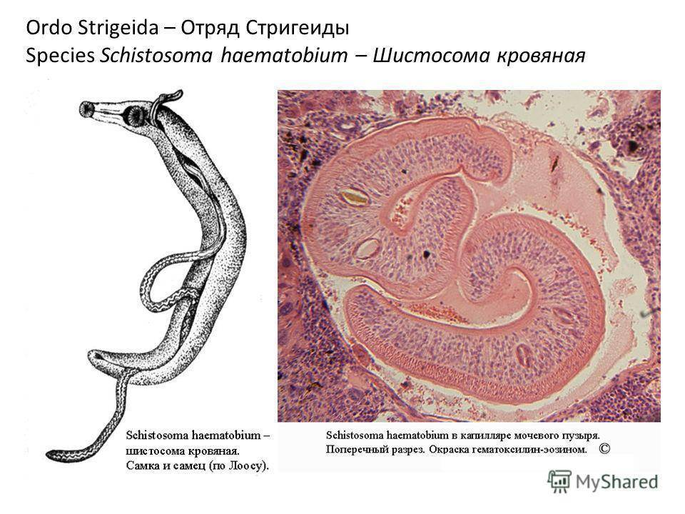 шистосомоз мочеполовой системы