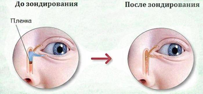 Закисают глаза у ребенка: причины и лечение