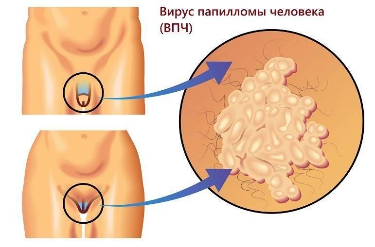 Трихомониаз у мужчин — симптомы и лечение, препараты, первые признаки