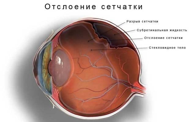Ангиопатия сосудов сетчатки глаза: причины, диагностика и лечение