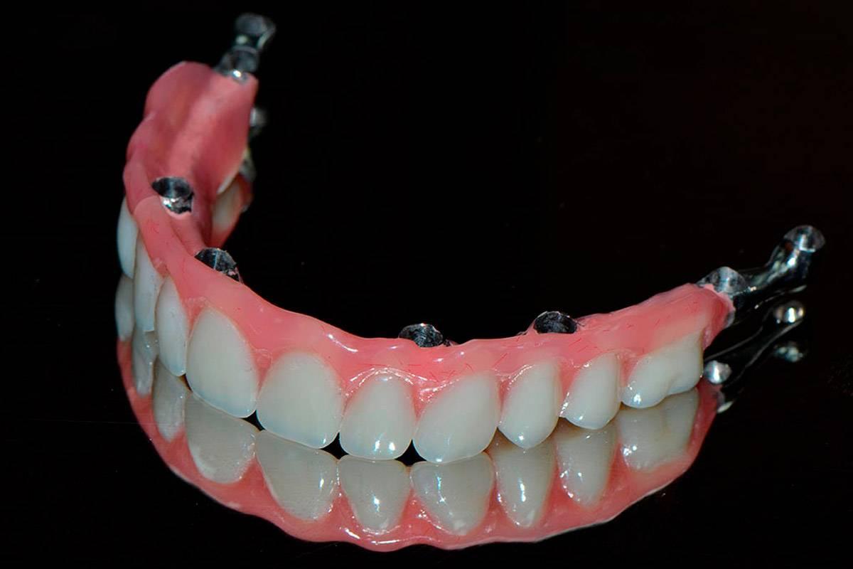 несъемные зубные протезы виды