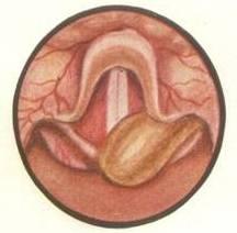 Почему в горле появляется киста?