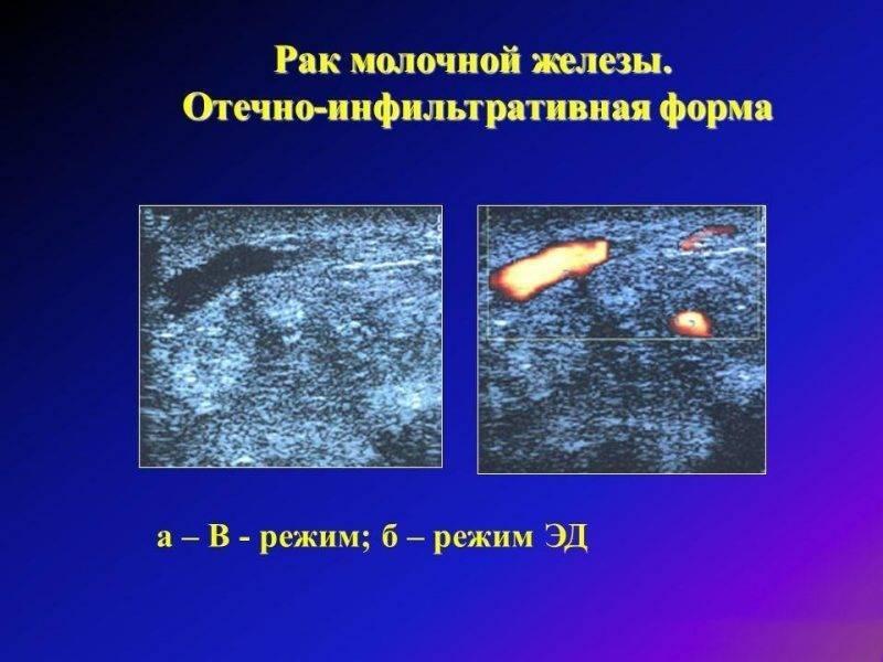 Особенности развития инфильтративного рака молочной железы и его формы