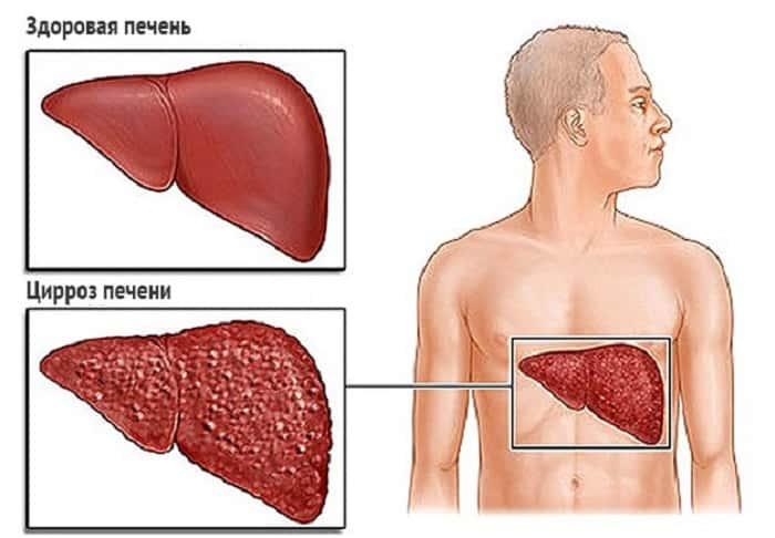 Как передается цирроз печени и заразен ли он?