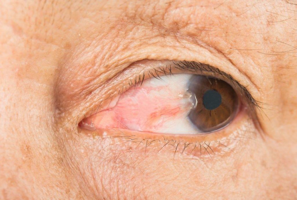 Птеригиум на глазу: что это такое, стадии и степени заболевания, лечение глазной болезни