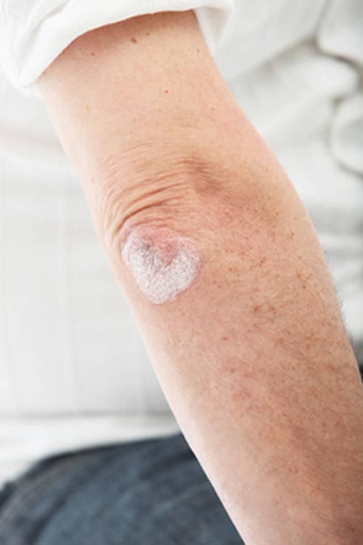 Псориаз на локтях — причины, симптомы заболевания