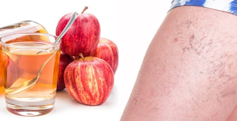 Эффективно ли лечение псориаза уксусом: рецепты и рекомендации