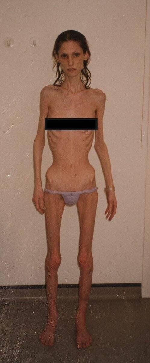 как выйти из зажора анорексия