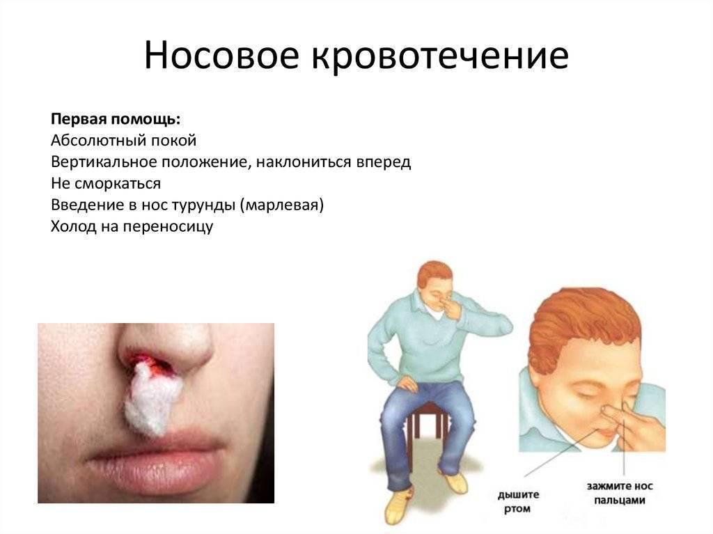 Первая помощь при носовом кровотечении у пожилых людей