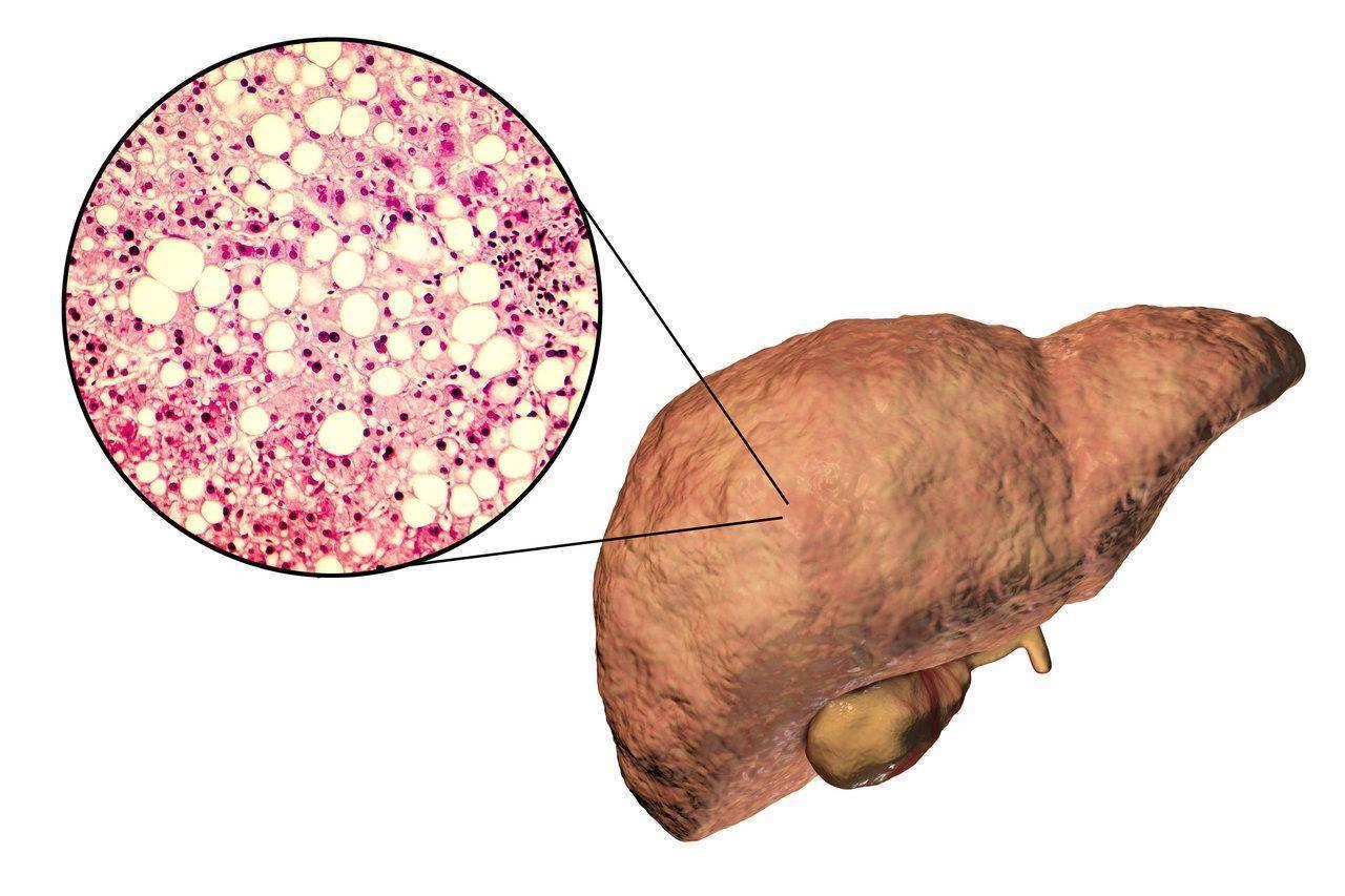 Стеатогепатоз: что это такое и как его лечить? лечение и диета при стеатогепатозе