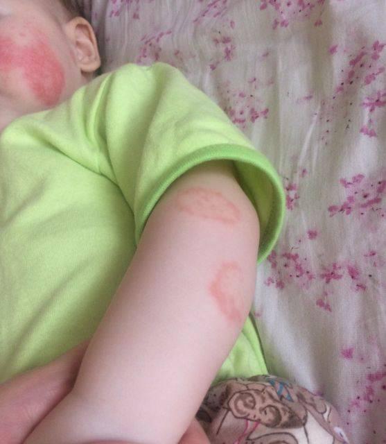 Как выглядит дерматит у детей? 31 фото: контактный, солнечный, вирусный и кандиозный у грудничка, на попе и лице у новорожденных