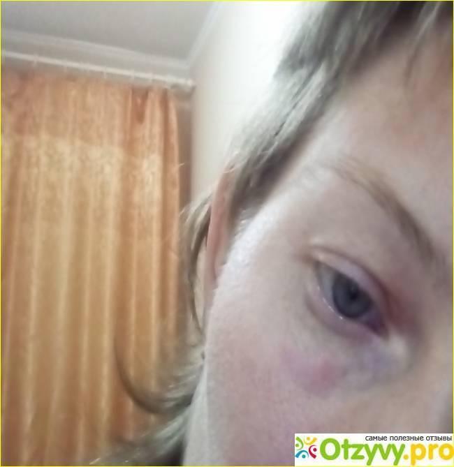 ребенка укусила мошка заплыл глаз