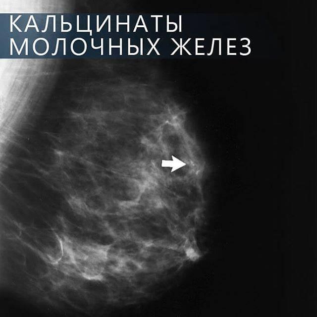 кальцинат в щитовидной железе