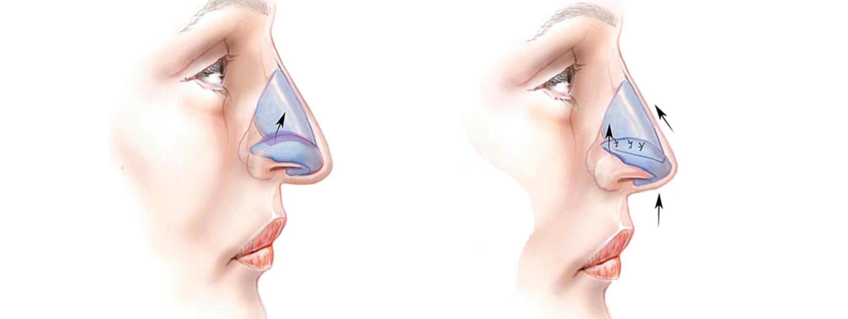 От чего болит нос сверху. почему болит нос
