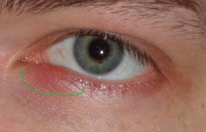 Синяки в уголках глаз у переносицы