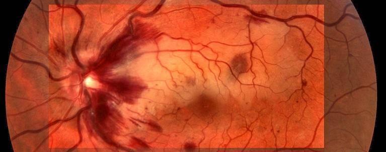 Тромбоз центральной артерии сетчатки (цвс): способы лечения, причины и осложнения