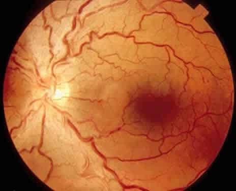Причины, симптомы и лечение ангиопатии сосудов сетчатки глаза