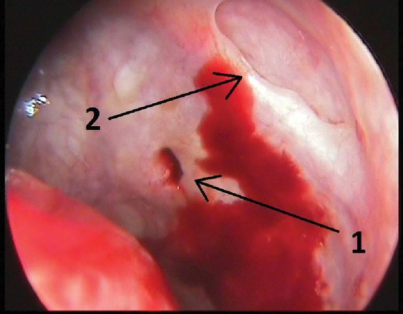 Острый катаральный риносинусит что это