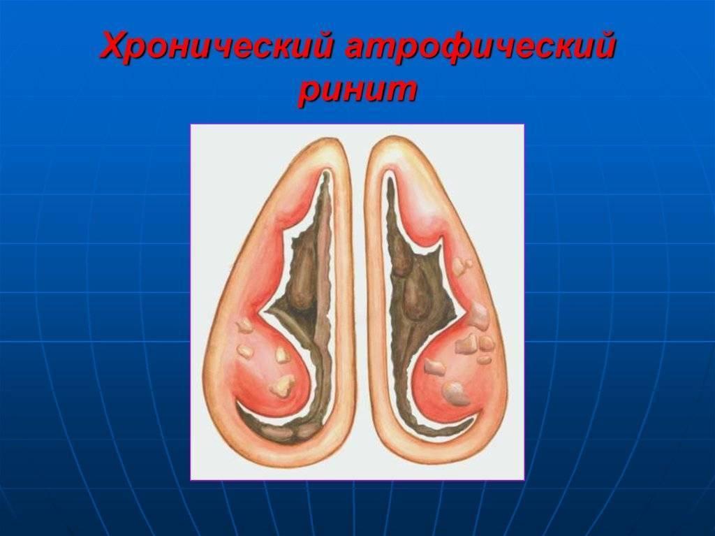 Лечение атрофического ринита у взрослых