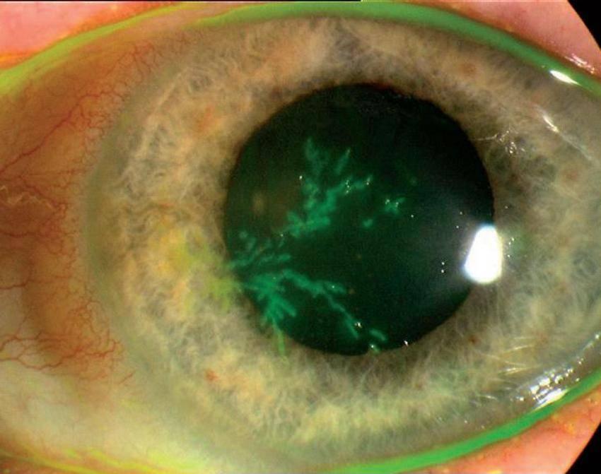 Герпетический кератит (поражение роговицы глаза) и его лечение - с примерами фотографий