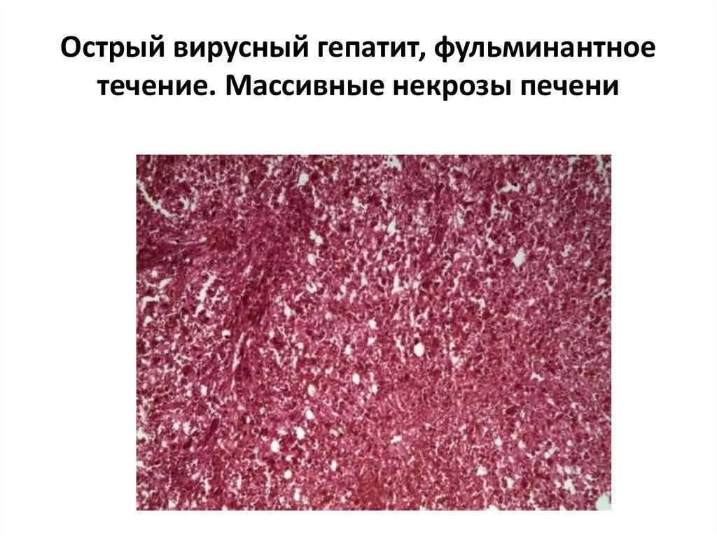 Острое фульминантное течение гепатита (злокачественная форма)