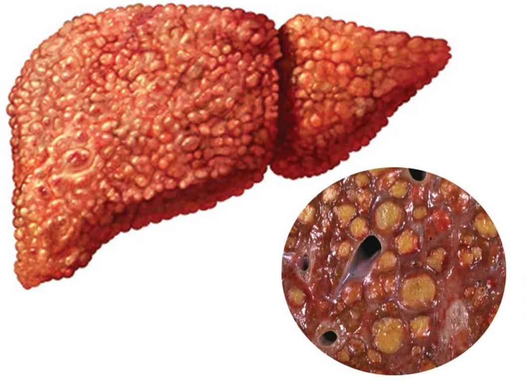 Как поддержать печень при гепатите с
