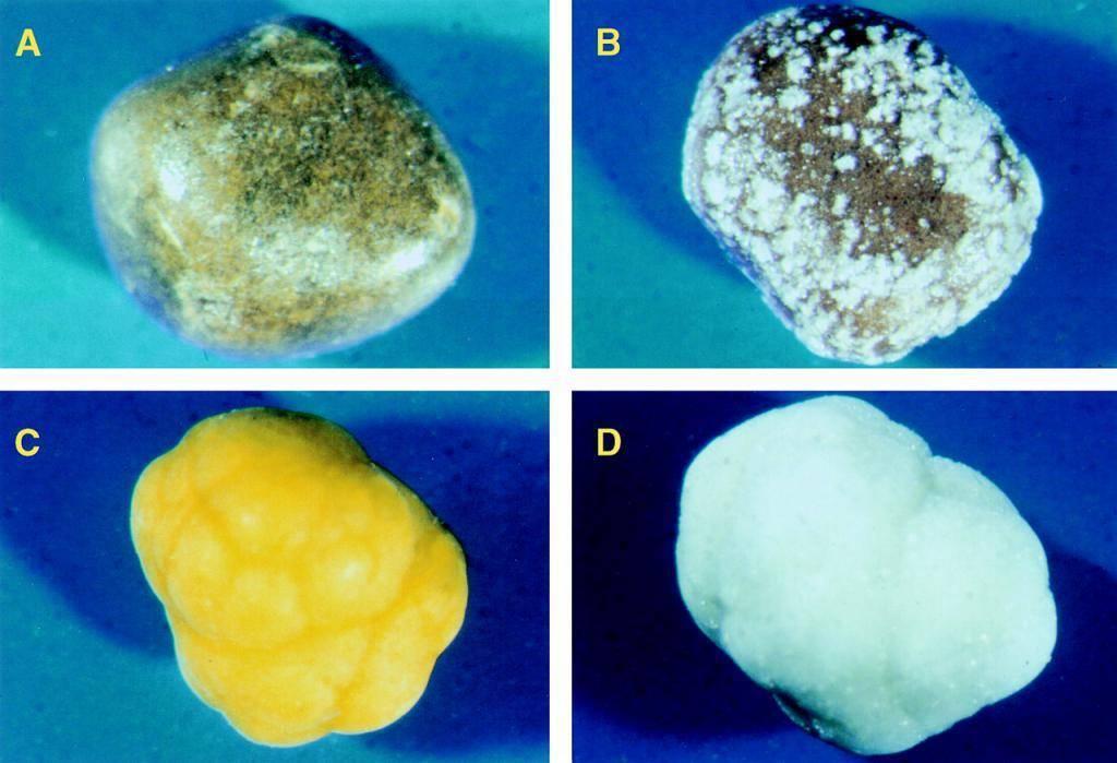 При каких размерах камней в желчном пузыре нужна операция?