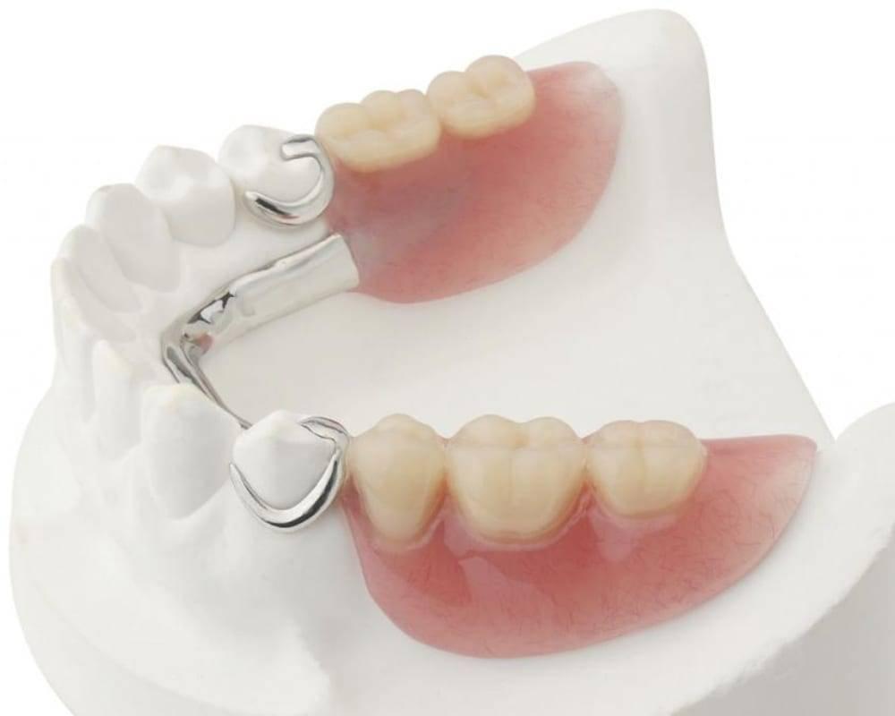 Разновидности съемных зубных протезов и их особенности