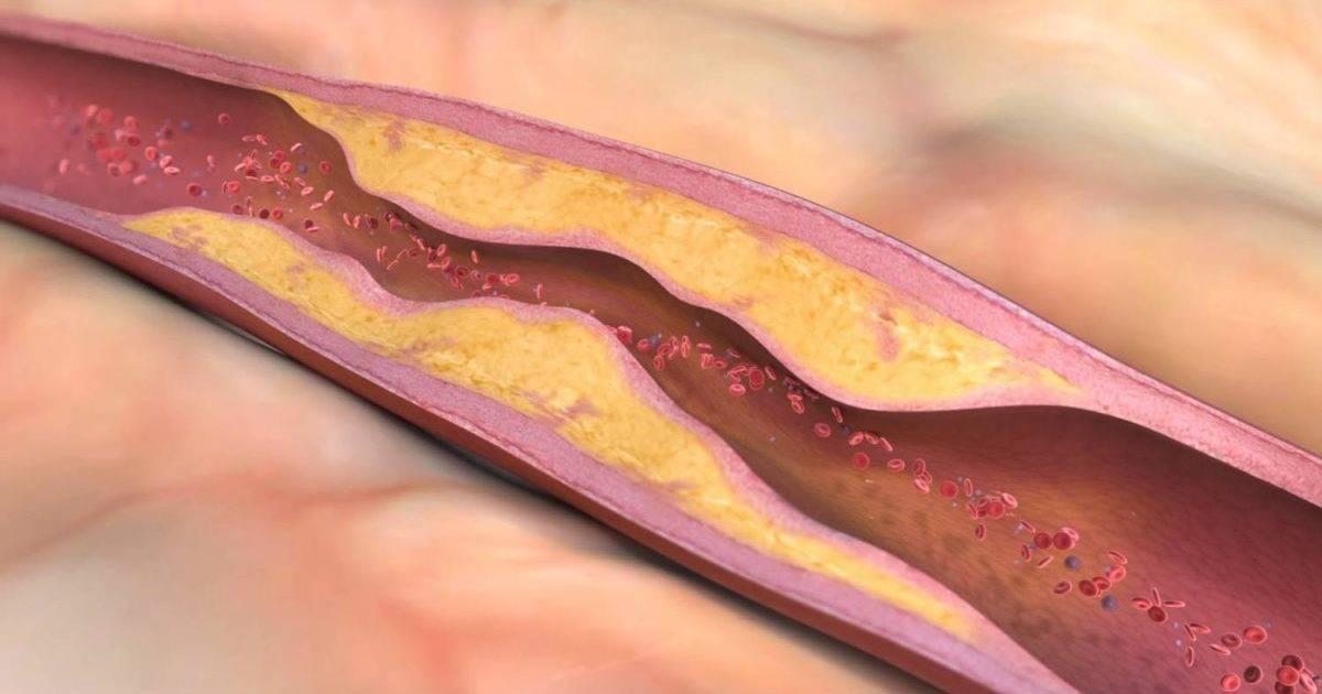 Атеросклероз сосудов головного мозга (церебральный атеросклероз) – симптомы, лечение, профилактика