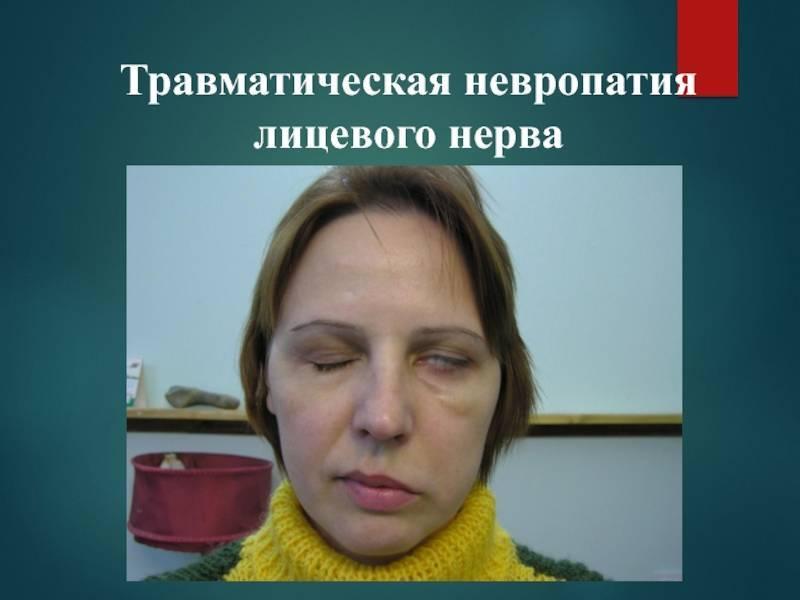 Симптомы и лечение неврита тройничного нерва