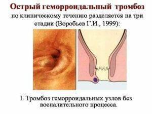геморроидальные узлы при беременности лечение