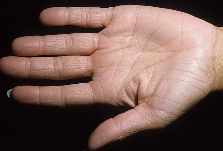 Как вылечить дерматит на ладонях рук