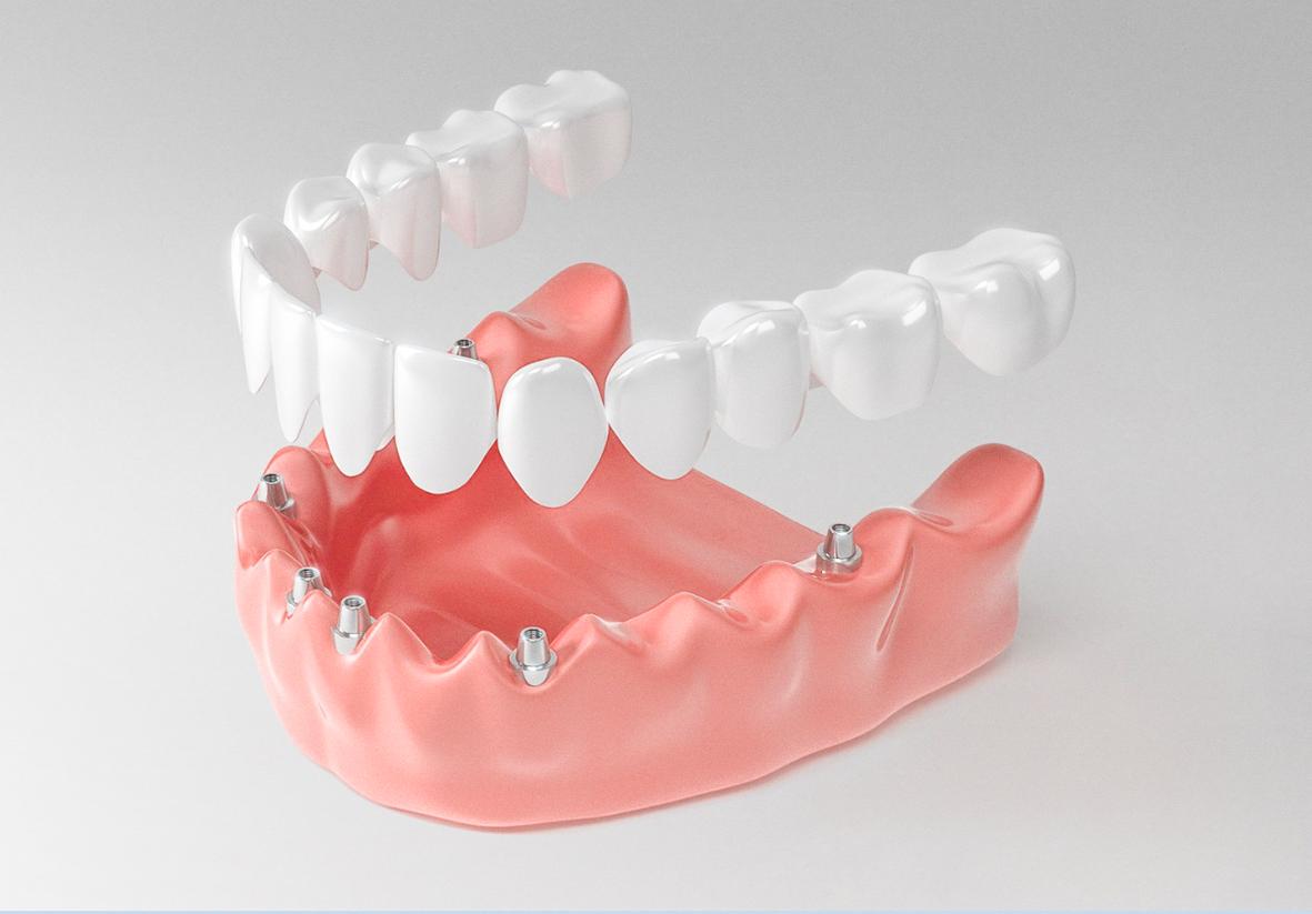 Частичные и полные съемные зубные протезы: плюсы и минусы подхода, альтернативные варианты