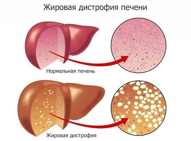 симптомы ожирения печени