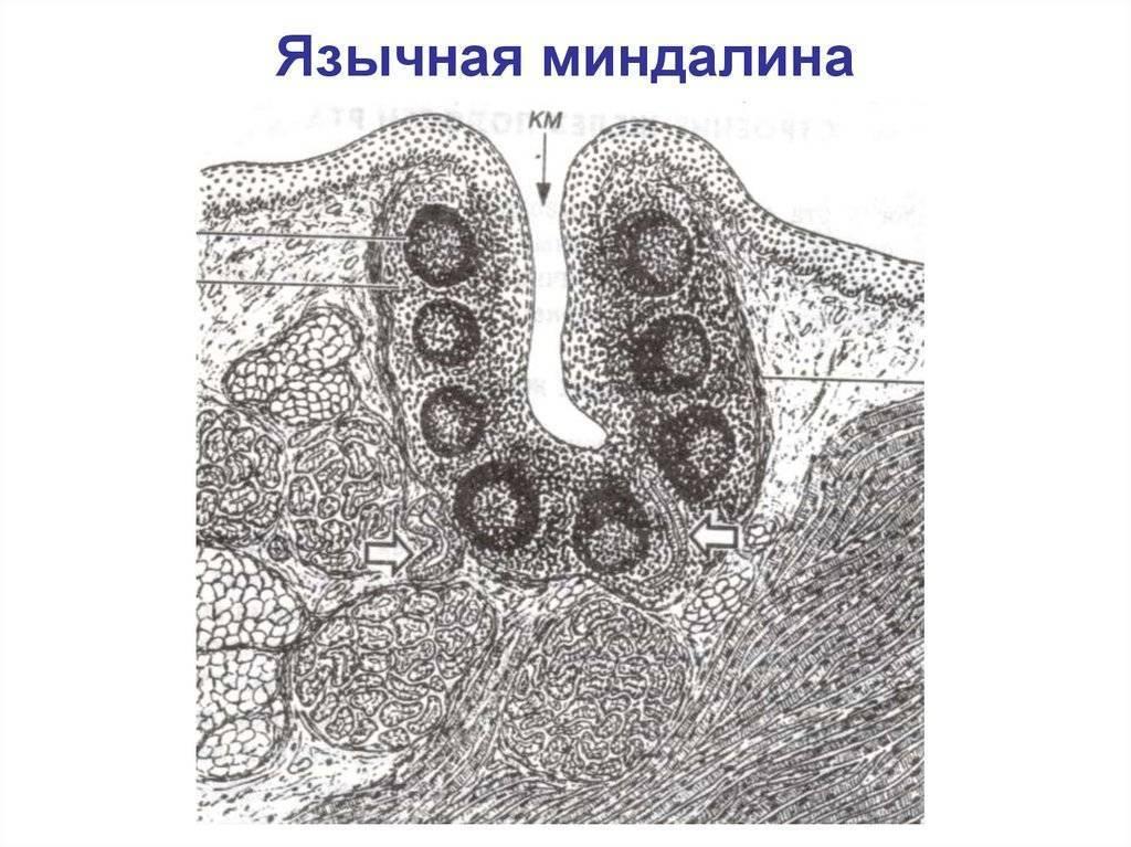 Миндалины — большая медицинская энциклопедия