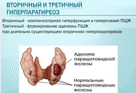 Аденома щитовидной железы: причины заболевания, основные симптомы, лечение и профилактика