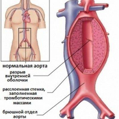 Атеросклероз брюшной аорты: способы диагностики и лечения