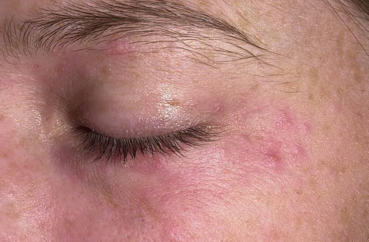 перианальный дерматит лечение