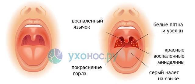 что сделать чтобы заболело горло быстро