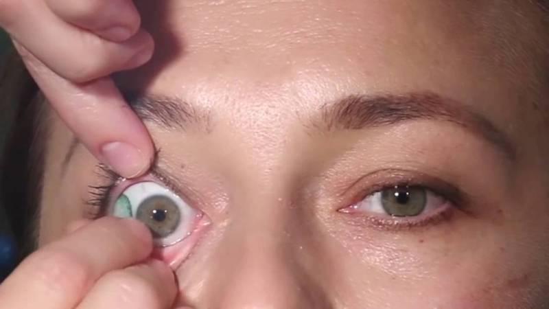 Сильно болит глаз после линз что делать