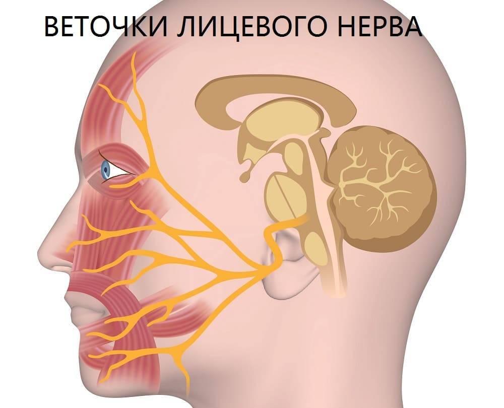 неврит тройничного нерва симптомы лечение