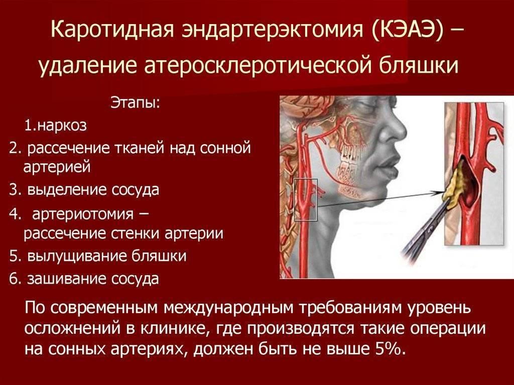 Эндартерэктомия сонных артерий   атеросклероз сонных артерий   болезни артерий   сосудистый центр им. т.топпера