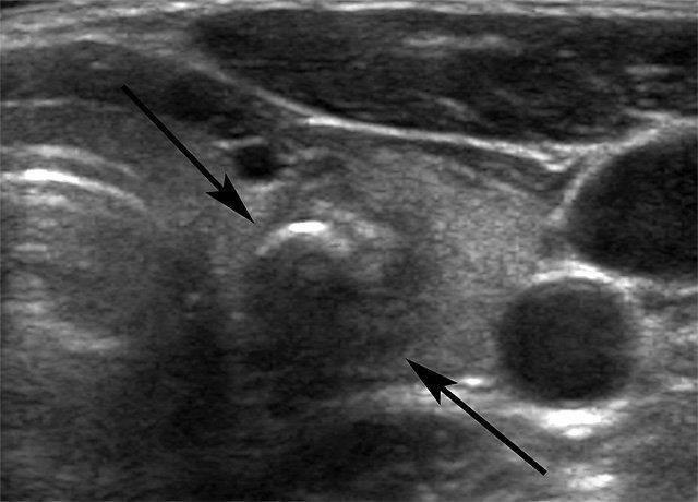 гипоэхогенные узлы щитовидной железы