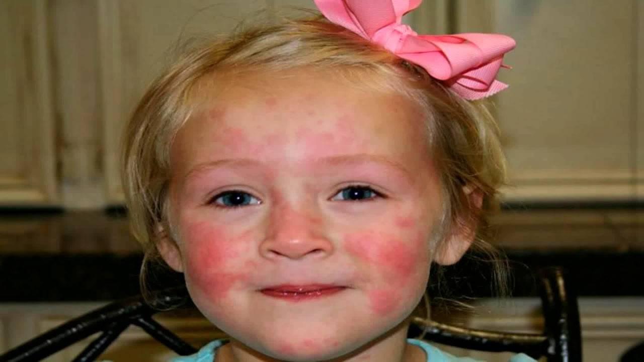 Высыпания на коже при глистах: причины, лечение, фото | все о паразитах