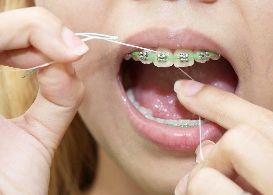 Как чистить зубы с брекетами — этапы и видео правильной чистке - много зубов