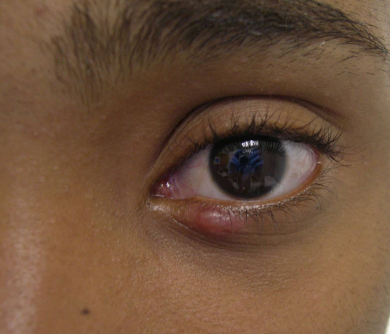 шишка на глазу на верхнем веке у ребенка