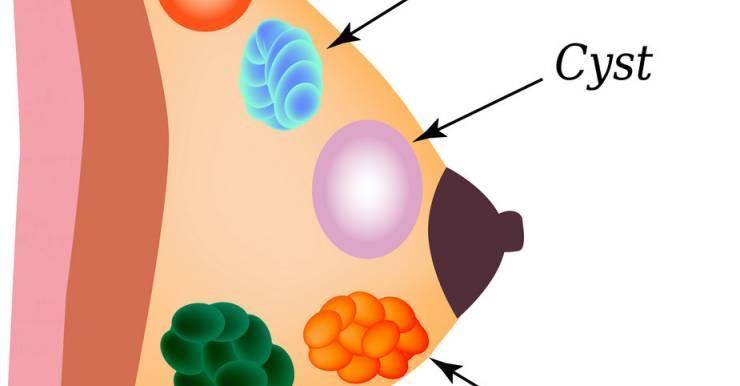 аденома молочной железы симптомы