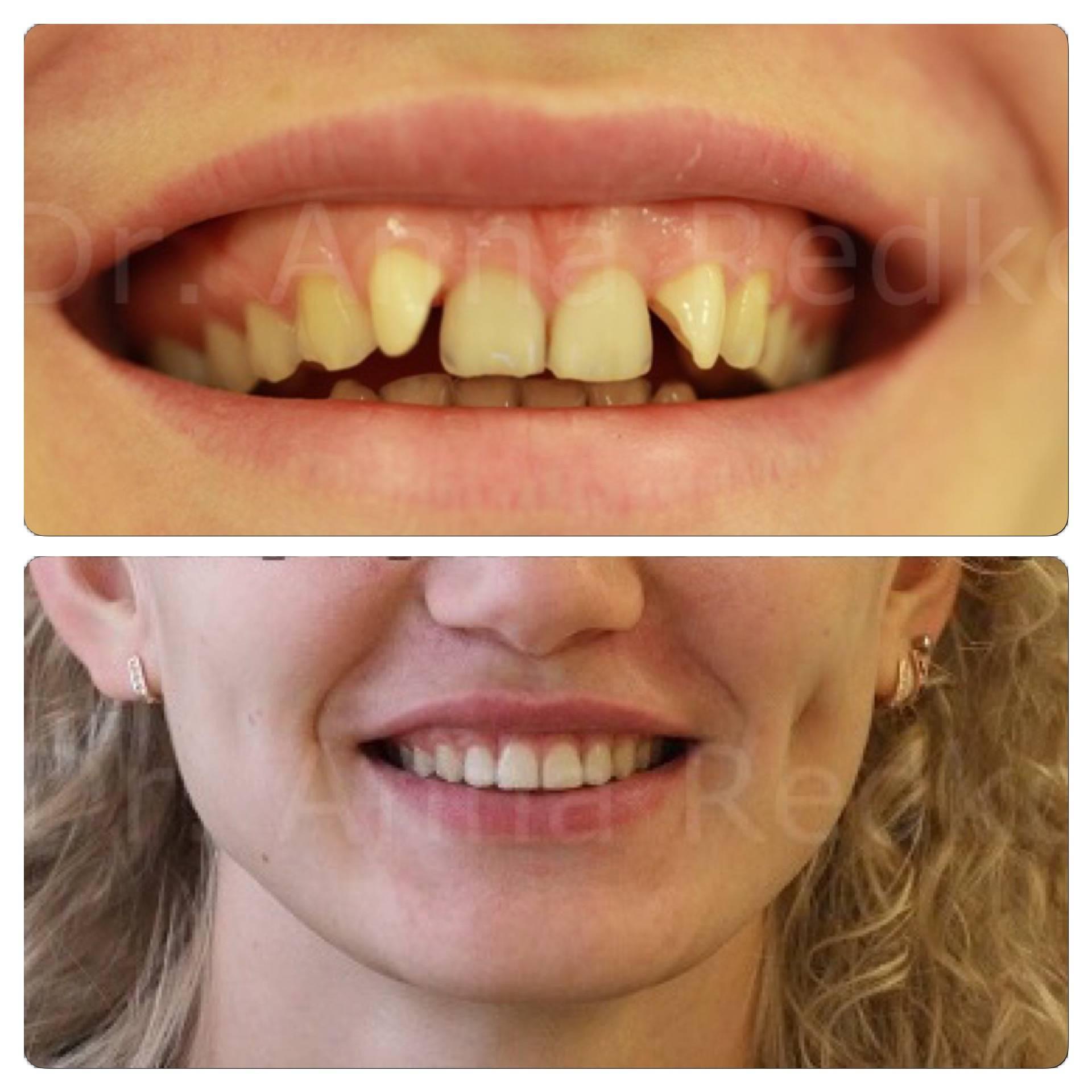 можно ли выровнять зубы в 20 лет